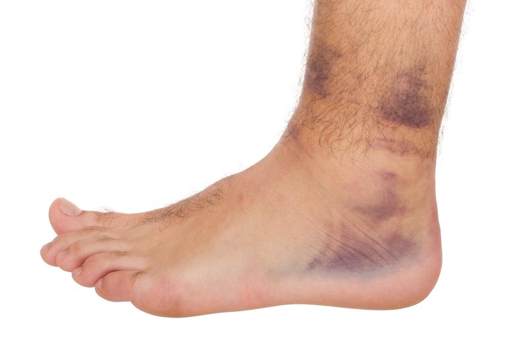 רגל פגועה