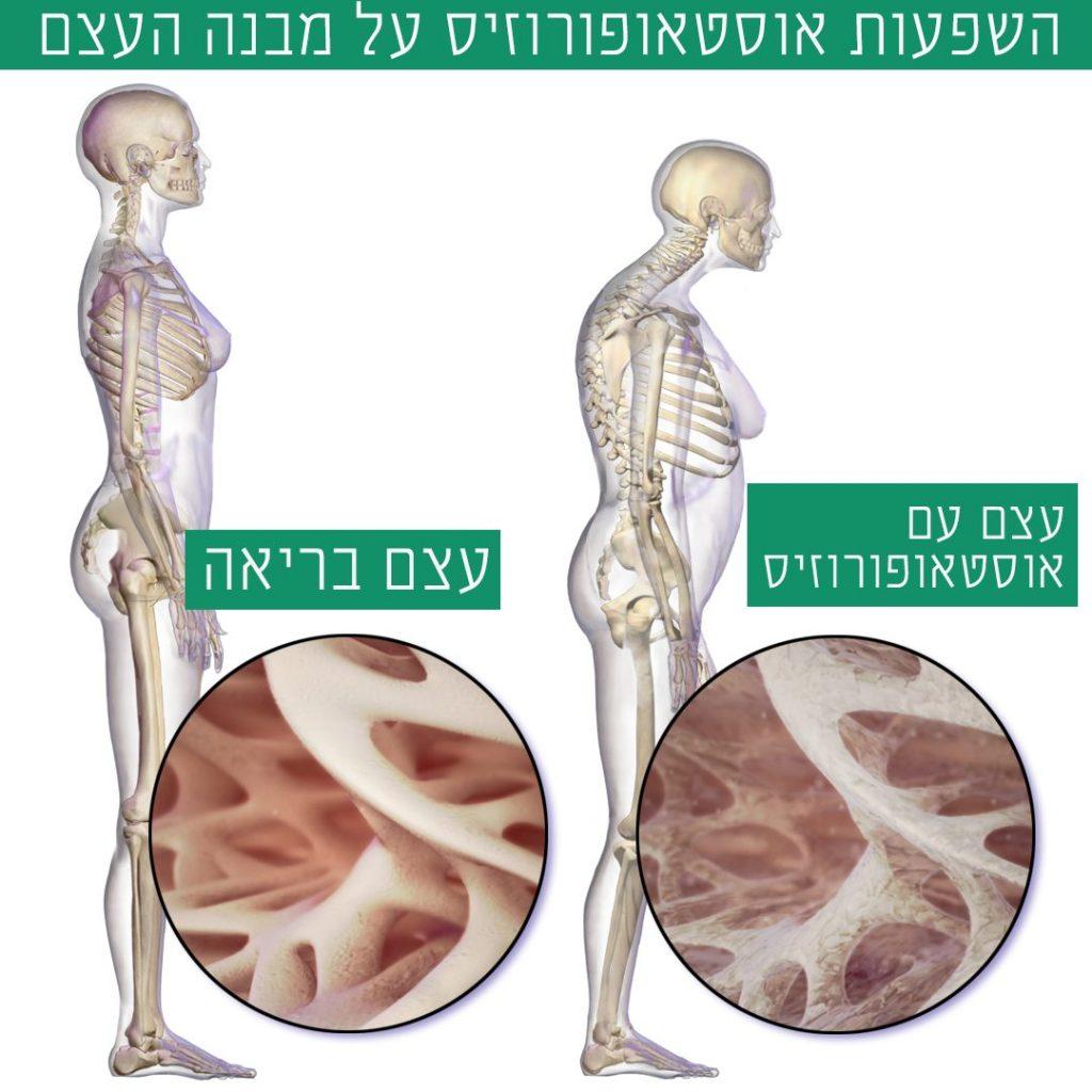 אוסטאופורוזיס
